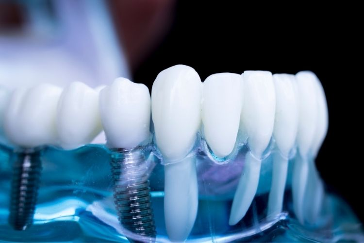 3D implantology